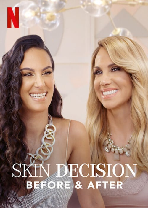 Skin Decision: Before and After mystream